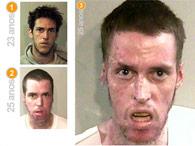 Metanfetamina tem efeitos colaterais chocantes; veja antes e depois